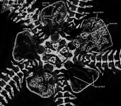 Brooding Brittle Star Babies in 3D